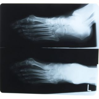 X Ray Photograph of Persons Feet Photographic Print