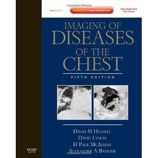 Imaging of Diseases of the Chest Expert Consult   Online and Print